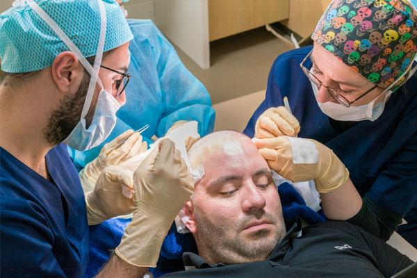 Patiënt die wordt behandeld door drie artsen voor een haartransplantatie