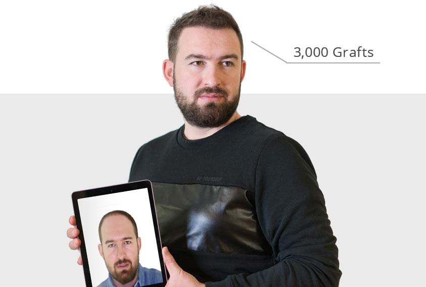 Voor en na resulaat van patiënt met kaalheid haartransplantatie van 3,000 Gra