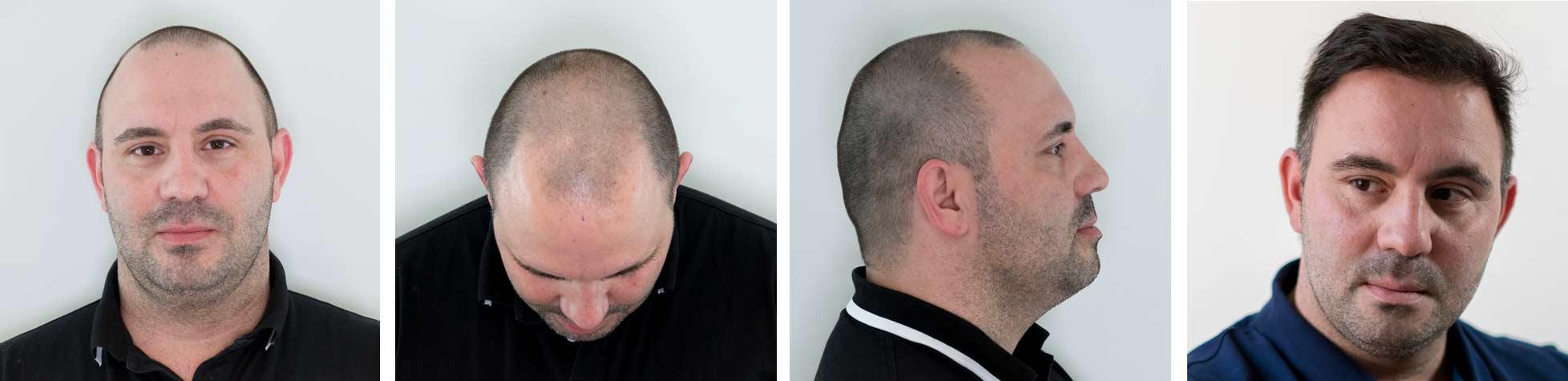Afbeelding voor de haartransplantatie van een patiënt