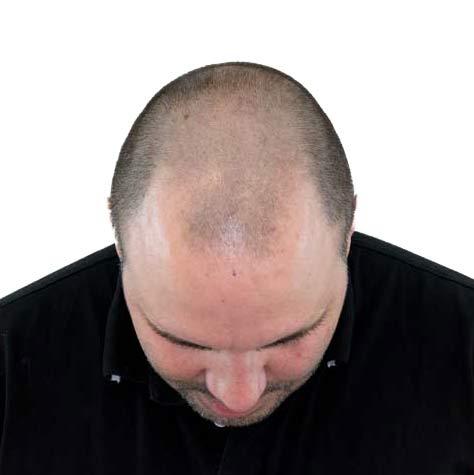 Bovenaanzicht van behandelend hoofd voor de haartransplantatie behandeling tegen kaalheid