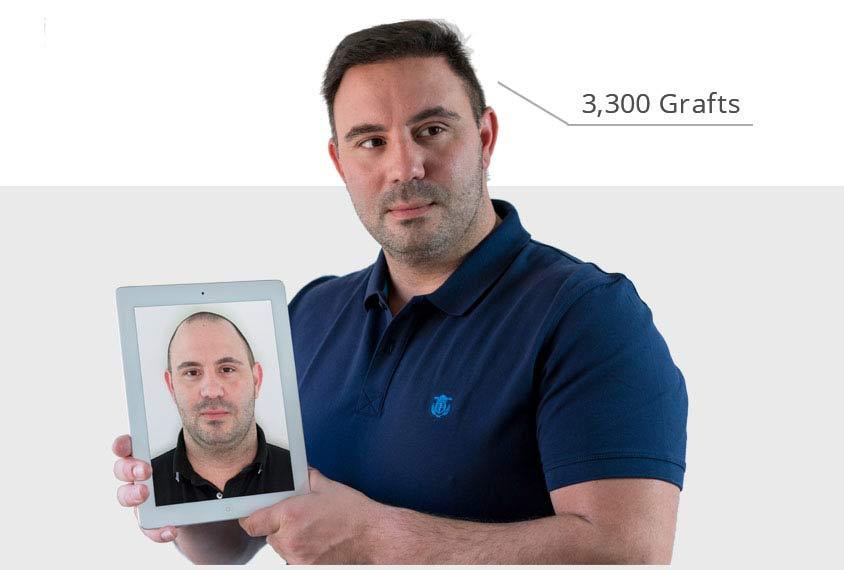 Voor en na foto van patiënt met haartransplantatie van 3,300 gra tegen kaalheid