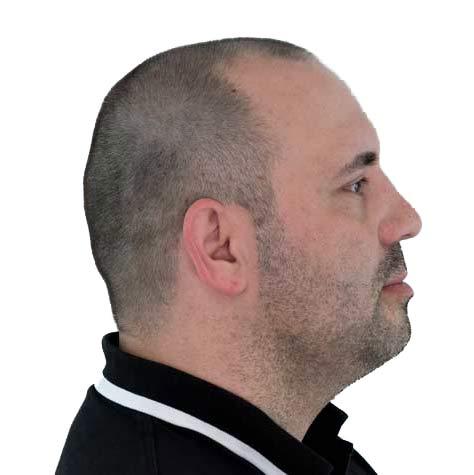 Zijaanzicht behandelde patiënt voor de haartransplantatie