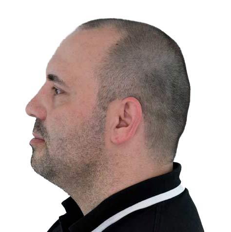Patiënt voor intake van haartransplantatie tegen kaalheid