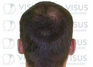 Goed opgevuld hoofd met haar na haartransplantatie door Visus Haarkliniek