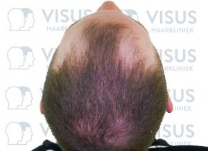 Aanzicht van boven van man met inhammen en haarverlies klaar voor haartransplantatie