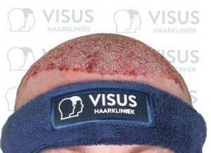 Vooraanzicht van opgevulde haarzakjes na haartransplantatie behandeling van Visus Haarkliniek