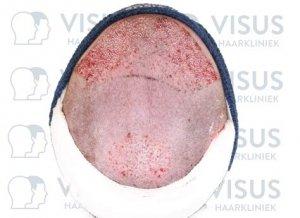 Behandelde plekken op hoofd na haartransplantatie door Visus Haarkliniek