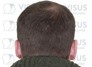 Kale kruin van patiënt die haartransplantatie ondergaat tegen kaalheid en het verdunnen van het haar