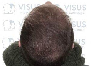 Behandelde patiënt met haartransplantatie tegen kaalheid mannen