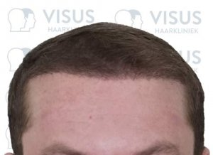 Nieuw aanzicht van nieuwe haarlijn na haartransplantatie behandeling