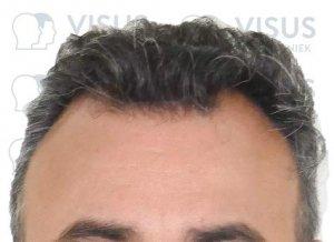 Voorkant van onbehandelde patiënt met inhammen voor de haartransplantatie