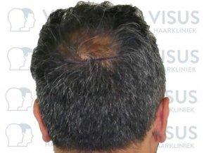 Achterkant van hoofd van patiënt die behandeld gaat worden voor haartransplantatie met markeringen waar haar geplaatst gaat worden