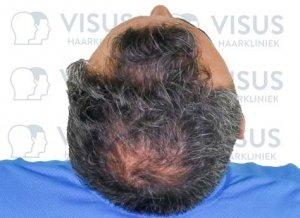 Het bovenaanzicht van behandelend patiënt voor een haartransplantatie tegen haarverlies en inhammen
