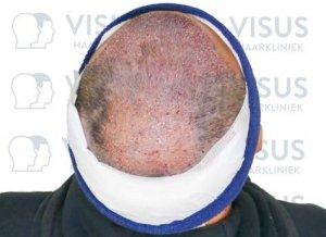 Bovenaanzicht van behandelde patiënt na haartransplantatie tegen kaalheid mannen