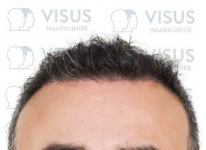 Resultaat na haartransplantatie behandeling door Visus Haarkliniek