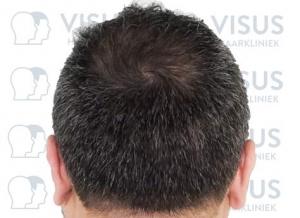 Resultaat na de beste haartransplantatie behandeling tegen kaalheid en haarverlies