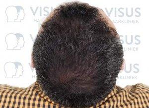 Resultaat van vol haar na een haartransplantatie behandeling bij Visus Haarkliniek