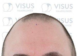 Hoofd met een markering om kaalheid te verhelpen met een nieuwe haarlijn en een haartransplantatie