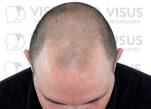 Een foto van kaalheid man voor de haartransplantatie