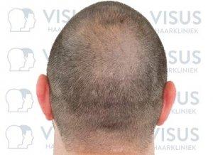 Foto van het behandelde hoofd van patiënt na genezing van de haartransplantatie