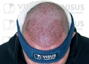 Een patiënt die behandeld is voor een haartransplantatie tegen kaalheid met net geplaatste haarzakjes op hoofd