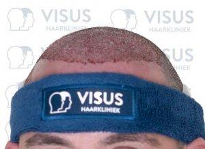 Nieuwe haarlijn na het plaatsen van de haarzakjes tijdens de haartransplantatie behandeling