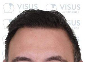 Nieuwe haarlijn na haartransplantatie bij patiënt