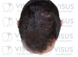 Resultaat van een haartransplantatie bij patiënt