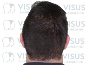 Resultaat van de haartransplantatie achterzijde van de patiënt