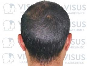 Foto van achterhoofd tijdens intake van patiënt voor een haartransplantatie tegen haarverlies