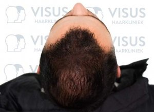 Bovenaanzicht van resultaat na de haartransplantatie tegen kaalheid
