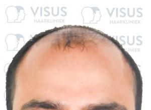 Foto van kaalheid van patiënt tijdens intake gesprek voor de haartransplantatie