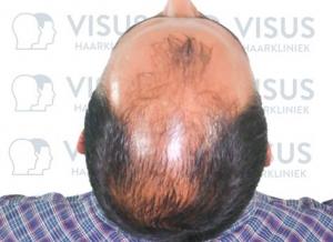 Bovenaanzicht van de patiënt voor de haartransplantatie tijdens het intake gesprek