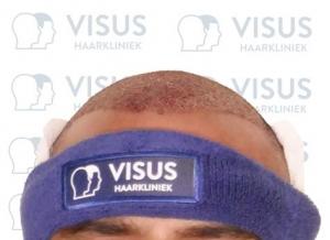 Resultaat en vooraanzicht na plaatsten van de haarzakjes tijdens de haartransplantatie om kaalheid tegen te gaan