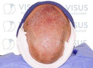 Bovenaanzicht van behandelde patiënt net na de haartransplantatie