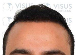 Vooraanzicht en resultaat na haartransplantatie tegen kaalheid mannen