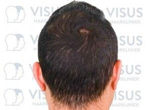 Achteraanzicht na haartransplantatie behandeling bij kaalheid en haarverlies