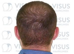 Haartransplantatie bij patiënt met resultaat foto van de achterzijde van zijn hoofd
