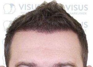 Haartransplantatie resulteert in mooie nieuwe volle haarlijn voor patiënt