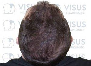 Goede bos haar bij patiënt na haartransplantatie behandeling tegen haarverlies en kaalheid