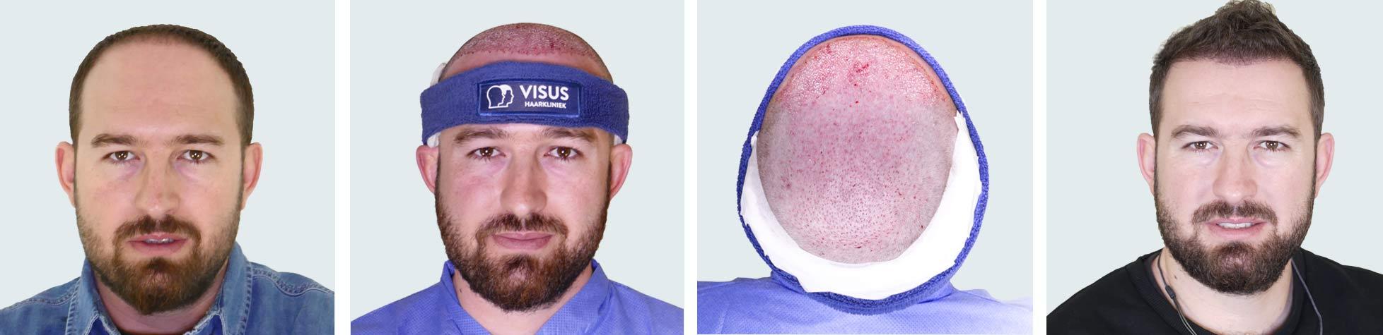 Reeks foto's van haartransplantatie bij patiënt voor en na resultaat